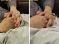 Eczema-hand2