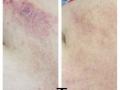 Eczema-tummy